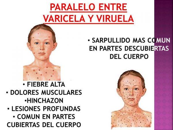 Diferencia Entre Varicela Y Viruela Diferencias Eu